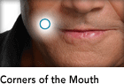 Corners of the Mouth